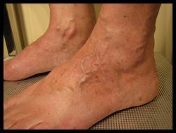 varicosites pieds