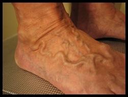 varices sur les pieds