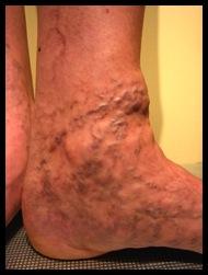 varices aux pieds